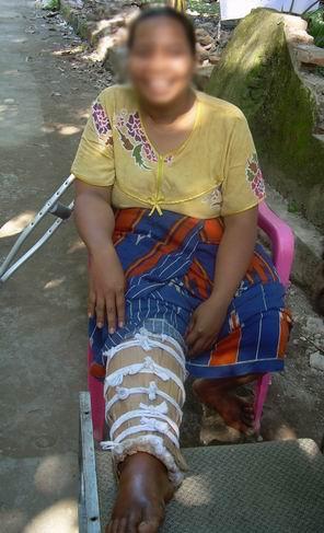 broken-leg.JPG